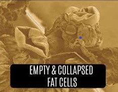 Collapsed-Fat-Cells